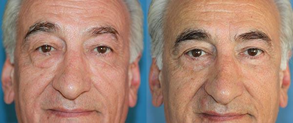 Фото до и после блефаропластики у мужчин