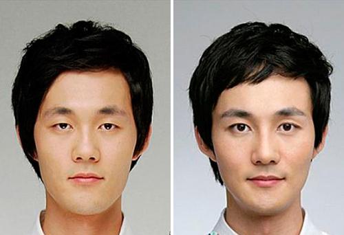 фото до и после блефаропластики азиатских век