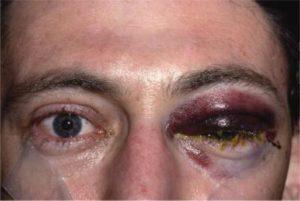 Ретробульбарное кровоизлияние