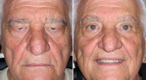 Блефаропластика верхних век до и после операции