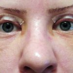 Блефаропластика уход после операции