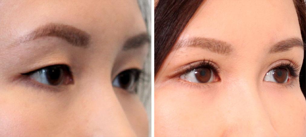 блефаропластика азиатских век фото до и после