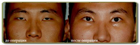 фото до и после блефаропластики азиатских глаз