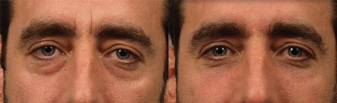 Блефаропластика мужчин фото до и после