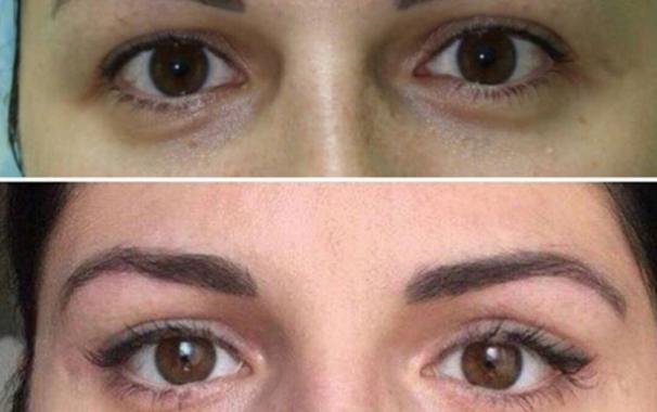 Блефаропластика Взгляд Клеопатры до и после операции