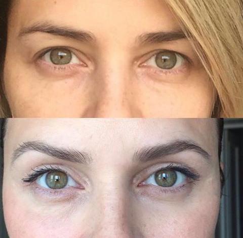 Взгляд Клеопатры фото до и после операции