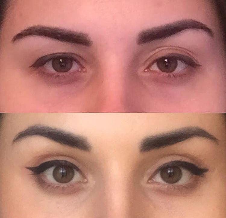 Взгляд Клеопатры до и после операции