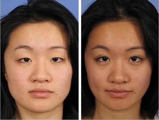 блефаропластика до и после живые фото