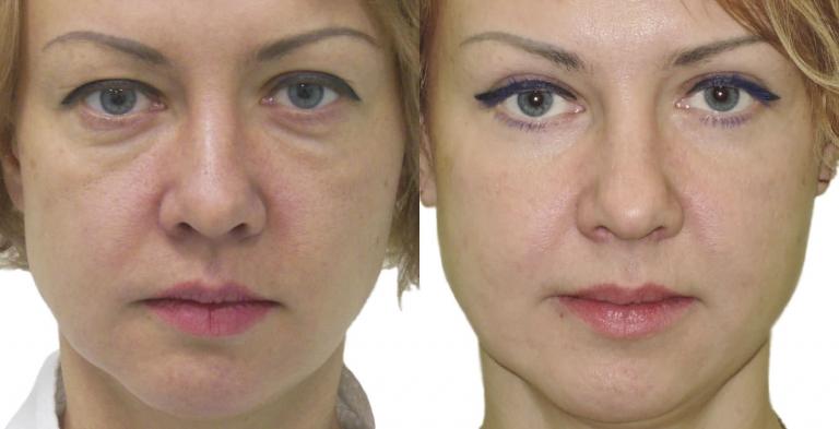 Фото до и после круговой блефаропластики