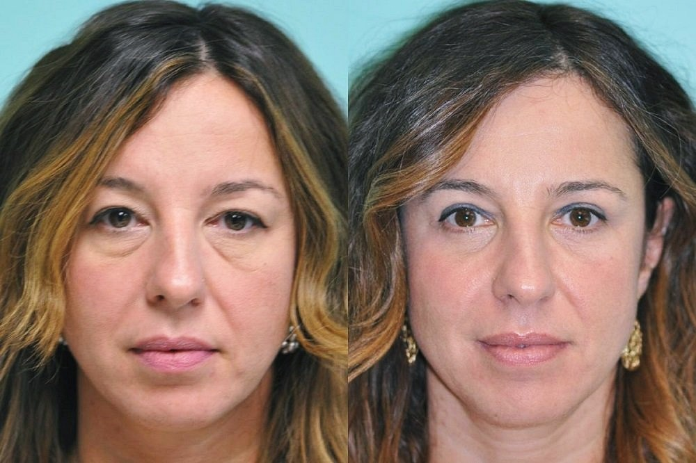 до и после блефаропластики фото