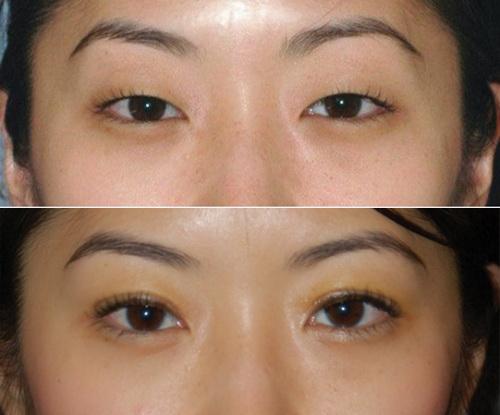 блефаропластика азиатских глаз фото до и после операции