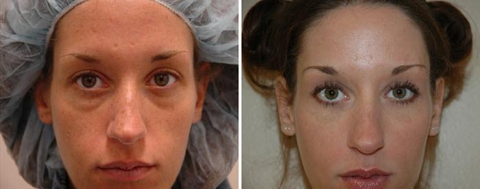 Фото до и после трансконъюнктивальной блефаропластики