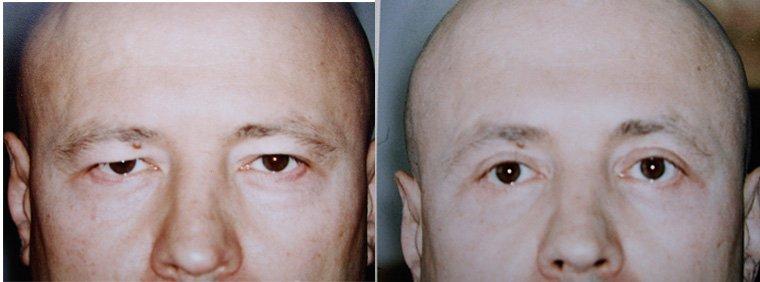Трансконъюнктивальная блефаропластика фото до и после процедуры