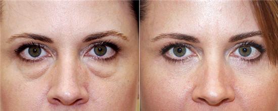 Альтернатива блефаропластике фото до и после процедуры