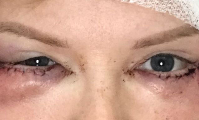 шрамы после блефаропластики