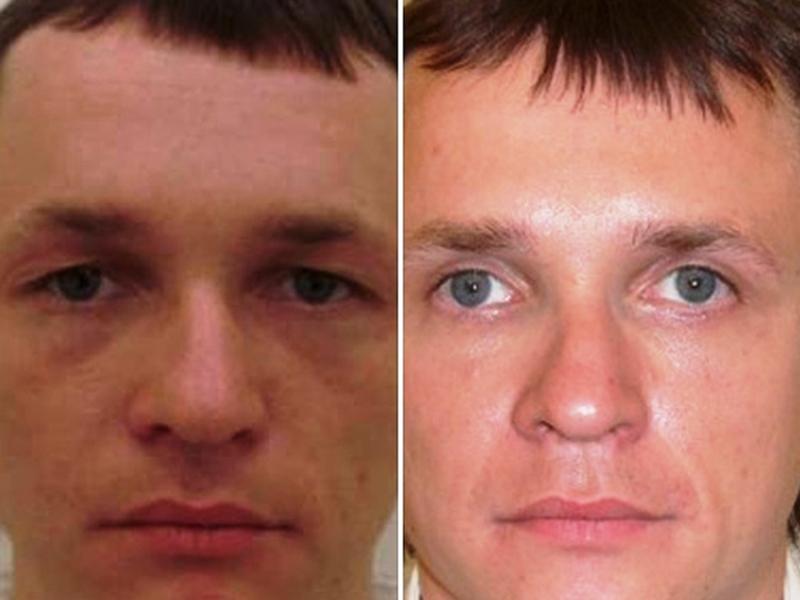 блефаропластика лазером фото до и после