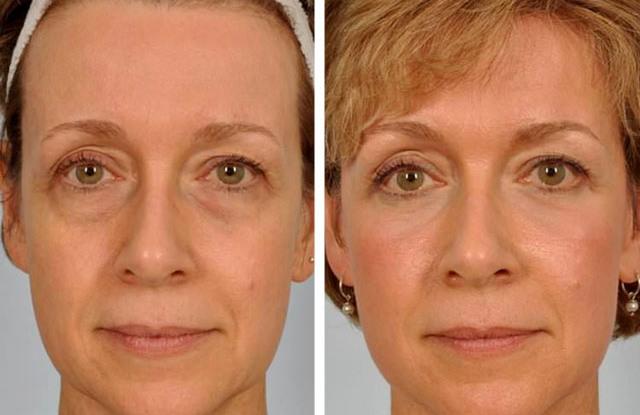 лазерная блефаропластика фото до и после